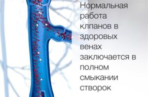 Створки клапанов вен