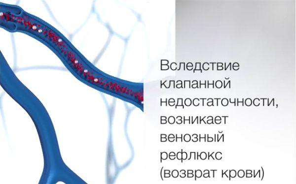 Венозный рефлюкс (возврат крови)