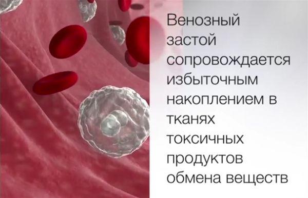 Венозный застой крови